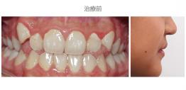 牙齒整齊排列-案例10