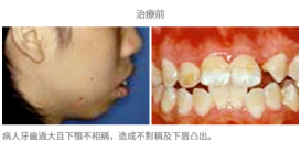 牙齒矯正配合手術-案例1
