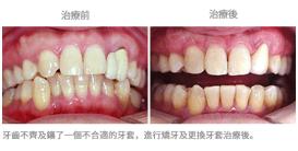 矯牙配合其他治療-案例2