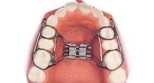 頜骨擴大器 副本2