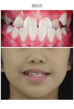 牙齒整齊排列-案例8