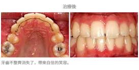 牙齒整齊排列-案例4-1
