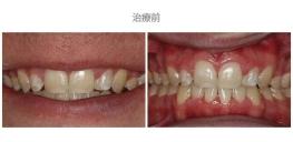 牙冠延長術-案例02