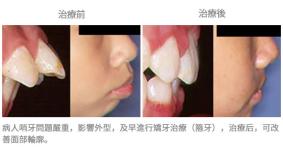 牙齒整齊排列-案例2