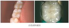 牙齒修補01
