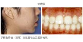 牙齒矯正配合手術-案例1-1