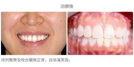 牙齒整齊排列-案例1-1