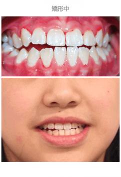 牙齒整齊排列-案例8-1