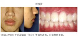 手術配合牙齒矯正02-1