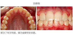 牙齒整齊排列-案例6-1