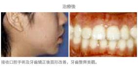 手術配合牙齒矯正01-1