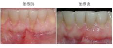 牙齦覆蓋術-案例03