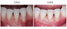 牙齦覆蓋術-案例05