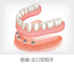 植牙方式3