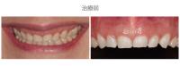 牙冠延長術-案例01