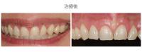 牙冠延長術-案例01-1
