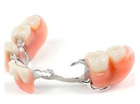 義齒修復-金屬局部牙托