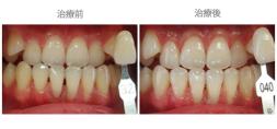 牙齒美白01