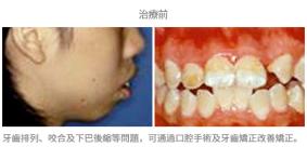 手術配合牙齒矯正01