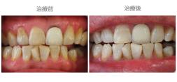 牙齒美白04