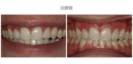 牙冠延長術-案例02-1