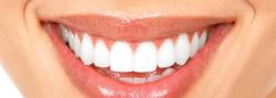 7.1 Broken Teeth